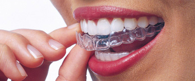 Felnőtt fogszabályozás